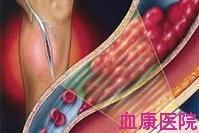 原发性骨髓纤维化症
