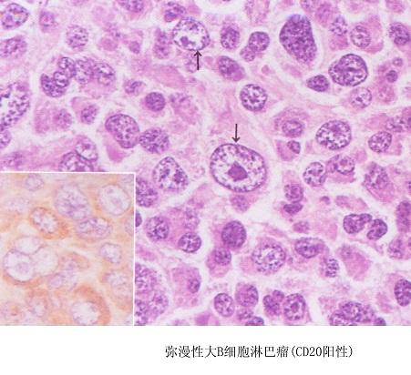 恶性淋巴瘤的临床分期